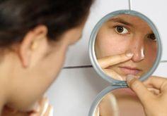 Cómo eliminar espinillas de la piel con bicarbonato de sodio