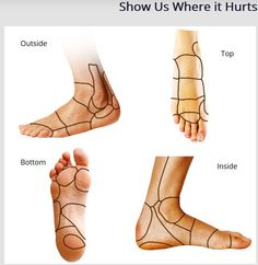 """On the Country Foot Care website you can use our """"Show us Where it Hurts"""" tool to understand what is causing the pain and discomfort in your foot.  Of course, once you have an idea of what it is, be sure to contact Country Foot Care to make an appointment to be examined and diagnosed by our team of talented physicians.  Appointments can be made by calling our offices at (516) 741-FEET (3338) or using the MAKE AN APPOINTMENT form on our website at http://countryfootcare.com/appointment/"""