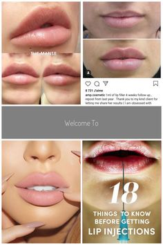 Dr Naomicosmetic Doctor On Keyhole Lips By Themanseclinic Lipfillers Fillers Injectables Keyholepout Dermal Fillers Lips, Facial Fillers, Lip Fillers, Lip Injections, Lip Plumper, Tom Holland Haircut, Botox Lips, Heart Shaped Lips, Hair Health And Beauty