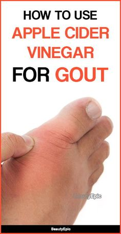 ACV will be able to cure this problem and help you to get rid of the gout pain. Here are few ways to use apple cider vinegar for gout to treat naturally at Home Remedies For Gout, Gout Remedies, Natural Cough Remedies, Cures For Gout, Health Remedies, Natural Cures, How To Treat Gout, How To Cure Gout, Gout Relief