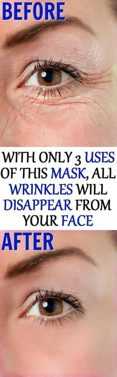 This Magical Mask Will Remove All Kind of Wrinkles Naturally