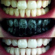 Doskonale wybiela zęby, oczyszcza skórę, a nawet zwalcza kaca. Na dodatek kosztuje niecałe 6 zł – Planeta Polska