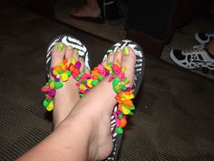 My shoes(: Water balloons!