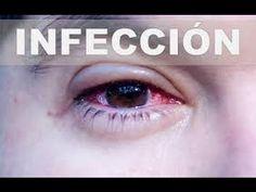 remedios para infecciones oculares infantiles