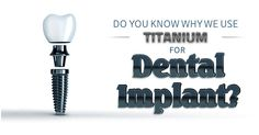 Do you know why we use titanium for Dental Implant? Dental Implants are remarkable in advancing tooth replacement technology because these devices are made of titanium, which is biocompatible, the surrounding bone is able to form a strong bond with them.