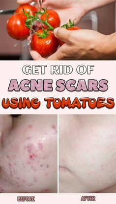 Get Rid Of Acne Scars Using Tomatoes