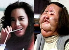 A former Korean model addicted to plastic surgery injected cooking oil into her face when doctors refused to perform any more cosmetic operations on her Hang Mioku now ab. Plastic Surgery Before After, Plastic Surgery Gone Wrong, Bad Plastic Surgeries, Plastic Surgery Procedures, Korean Plastic Surgery, Celebrity Plastic Surgery, Skin Care Regimen, Skin Care Tips, Makeup