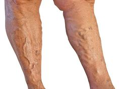 Varicose veins should not be ignored, it may not be just a cosmetic issue. Complications can occur including blood clots and skin ulceration. Under most circumstances varicose veins can be resolved with an out-patient procedure under local anesthesia. Varicose Veins Causes, Varicose Vein Removal, Varicose Vein Remedy, Varicose Veins Treatment, Radiofrequency Ablation, Spider Vein Treatment, Lunge, Natural Remedies, Home Remedies