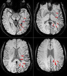 Solución caso nº 5: migraña http://buff.ly/2oFNZEZ #neurorradiología #neuroimagen #resonancia #MRI  https://flic.kr/p/THfCad   migraña