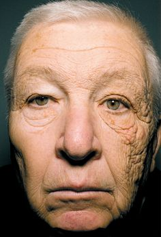 omg!  {wear sunblock} the patient reported that he had driven a delivery truck for 28 years. fascinating. do you put sunblock on your little one everyday?