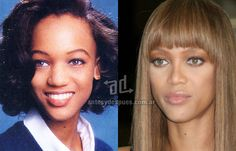 La nueva nariz operada de Tyra Banks