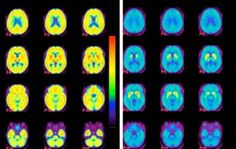A Promising Alzheimer's Treatment for Pennies a Day ~ Vitamin B-complex contains 8 different vitamins, and all of them are vital for your health. But three of them — B6, B12, and folic acid (B9) — are especially critical for your brain. Studies have shown that these vitamins may prevent mental decline, dementia, and even be an effective treatment for Alzheimer's by reducing levels of homocysteine. http://www.wakingtimes.com/2013/10/17/promising-alzheimers-treatment-pennies-day/