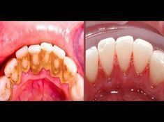 Video shows 3 best ways to remove teeth plaque or tartar at home without visiting a dentist for your dental cleaning. Remedies For Strong and White Teeth: ht. Health And Beauty Tips, Health Tips, Teeth Whitening, Home Remedies, Baking Soda, Beauty Hacks, Food And Drink, Health Fitness, Healthy