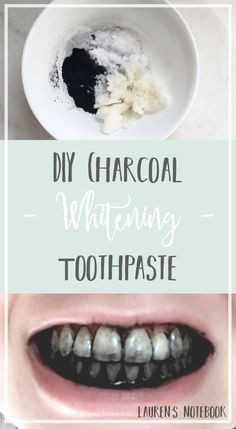 Natural Teeth Whitening Remedies - Hello readers and welcome to another Friday DIY! I'm so excited to share this amazing DIY toothpaste with you all today because teeth whitening is something I've always struggled with. Teeth Whitening Remedies, Natural Teeth Whitening, Whitening Kit, Skin Whitening, Diy Teeth Whitening Charcoal, Charcoal For Teeth Whitening, Diy Charcoal Toothpaste, Get Rid Of Warts, Remove Warts