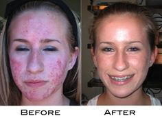 Yes, this is real! It's a #true testament of the quality of treatment Theralight machines can provide!