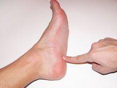 Voici comment vous débarrasser de la douleur aux talons