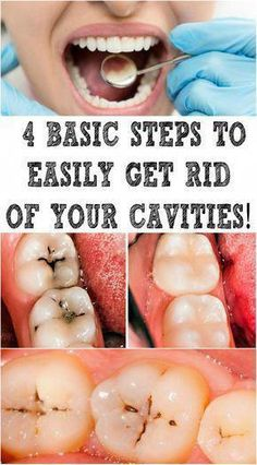 Oral diseases affect billion people worldwide, with dental caries being the most prevalent condition.Cavities can affect anybody at any age. Teeth Health, Healthy Teeth, Dental Health, Oral Health, Dental Care, Health Diet, Get Healthy, Healthy Life, Healthy Food