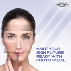 Getting old is inevitable but looking older doesn't have to be. Reverse the effects of ageing on your skin with Clinic Dermatech's Advanced Photo Facial. Book an appointment today. Botox Migraine, Photo Facial, Prp Hair, How To Remove Pimples, Pharmacy Design, Skin Clinic, Body Sculpting, Laser Hair Removal, People Photography