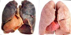 Если Вы курите более 5 лет, воспользуйтесь этим рецептом. Он спасет Ваши легкие!