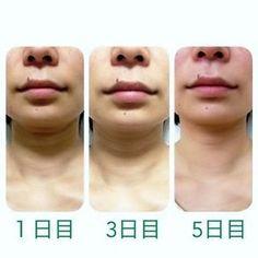 首のしわ 5日目 正面 Make Beauty, Beauty Care, Beauty Hacks, Face Care, Body Care, Skin Care, Health Diet, Health Fitness, Neck Wrinkles