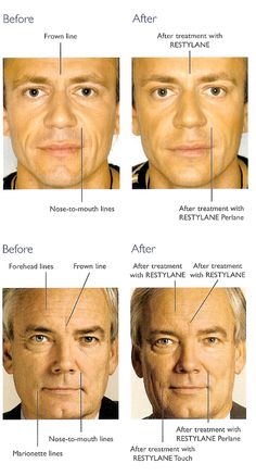 Welcome to Pure Aesthetics – the city's Premier Aesthetic Clinic for dermal fillers in Nottingham. We offer a range of dermal fillers that boost volume in the face and the lips and reverse the appearance of ageing. They also stimulate the production of collagen in the skin and enhance its appearance with almost immediate results.