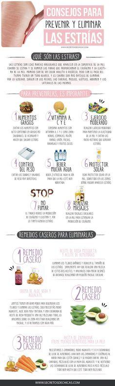 Consejos para prevenir y eliminar las estrias