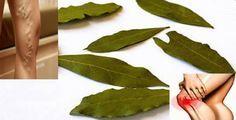 Alloro: una pianta ricchissima di benefici per la nostra salute | Rimedio Naturale