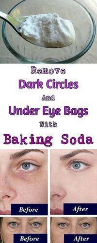To get rid of the dark circles and under eye bags you need to soak a pair of cotton pads in a glass of hot water mixed with 1 teaspoon of baking soda. Place the cotton pads under the eyes and let them sit for 10-15 minutes. Rinse it off and apply moisturizer.