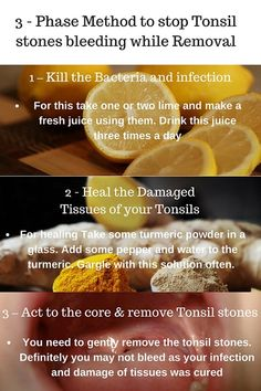 Are you getting blood while trying to remove your tonsil stones??  Here is the solution that completely solves the problem of tonsil stones bleeding naturally. 3 Phases cure to stop tonsil stones bleeding while removal..