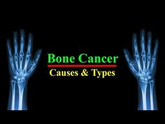 Bone Cancer    Types and Bone Cancer Causes   