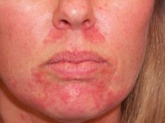 Cure Your Perioral Dermatitis