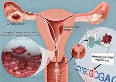 cancer ovarian feminin