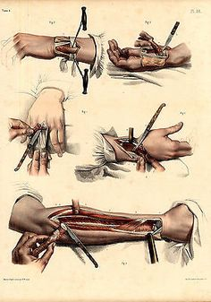 Antique Medical Anatomy Print-RESECTION-ARM-HAND-BONE-Pl. 56-Bourgery-1831