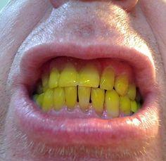 Prírodná mágia. Ako odstrániť ŽLTÝ POVLAK zo zubov? :: Svet zdravej spirituality