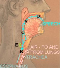 """Laryngectomy: """"Esophageal Speech"""" Pinned by SOS Inc. Resources.  Follow all our boards at http://pinterest.com/sostherapy  for therapy resources"""