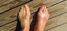 Natural Remedies For Swollen Feet 9 Home Remedies For Gout Pain - There is nothing good about gout. Essentially a short-term form of arthritis, gout is caused by elevated levels of uric acid in the blood stream Home Remedies For Gout, Gout Remedies, Headache Remedies, Natural Home Remedies, Health Remedies, Herbal Remedies, Natural Treatments, Fracture De Fatigue, Doterra Essential Oils