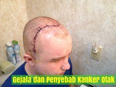 http://www.caramengobatipenyakitjeniskankertanpaoperasi.135street.com/gejala-dan-penyebab-kanker-otak-yang-wajib-anda-ketahui.html