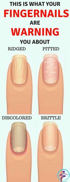 Learn The Signs Your Fingernails Give To You About Health And Interpretation Of Some