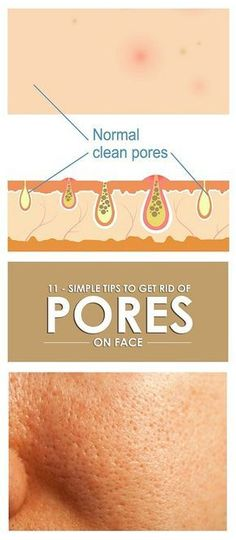 Skin and face pores may effect the natural beauty of face. Here are the 11 best home remedies for how to reduce pores on face and skin