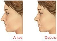 Rinoplastia também pode ser um meio de aliviar um bloqueio nas narinas.