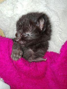 Jack was born with a leg deformity