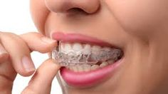 Invisalign is the latest technology innovation in Orthodontics which uses invisible aligners (or clear braces) to straighten your teeth. A Better Smile is a Platinum Elite Provider in Australia. We offer Invisalign and Invisalign Teen at the best prices in Sydney! Dental Braces, Teeth Braces, Dental Surgery, Dental Implants, Dental Care, Smile Dental, Smile Teeth, Dental Hygiene, Teeth Alignment