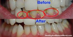How to Treat Gum Infection (Gingivitis) Naturally