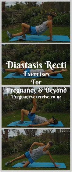 Diastasis recti exercises suitable for pregnancy and postnatal