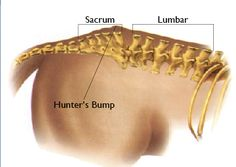 Soreness in your horse's sacroiliac area is a pain in the croup.
