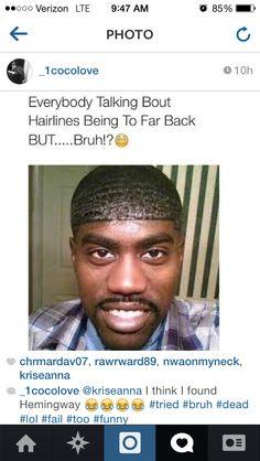 That hair line tho