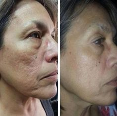 Boost Collagen And Skin Spring With Facial Toning Rubbing - Yield That Gorgeous Skin Texture!