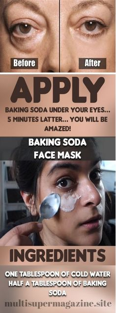 Place Baking Soda Beneath Your Eyes And Just After 5 Minutes Get Surprised! – Multi Super Magazine