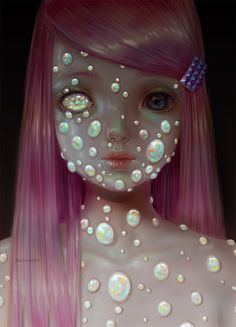 Opalitis, a condition in which opals grow rapidly on a person's skin until their entire body becomes opalized.