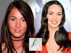Megan Fox, estrella de Hollywood, tampoco ha podido resistirse a mejorar su belleza. #estetica #dranido #28001